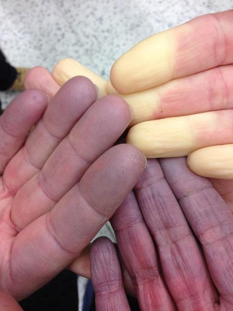 Kolmet SSc-kädet
