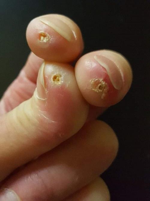 Denise Elmerin sormihaavat (3)