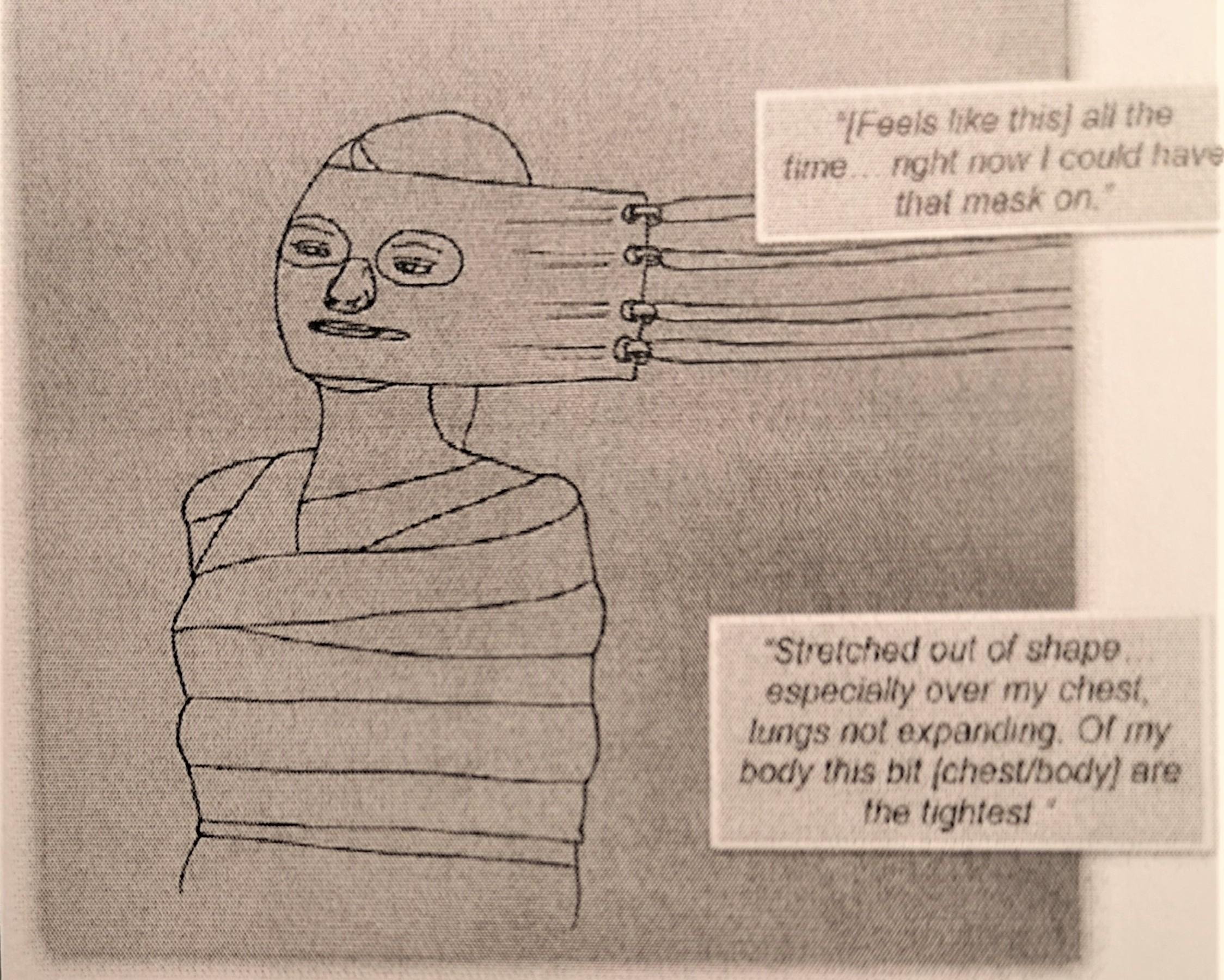 Skleroosi Tarkoittaa