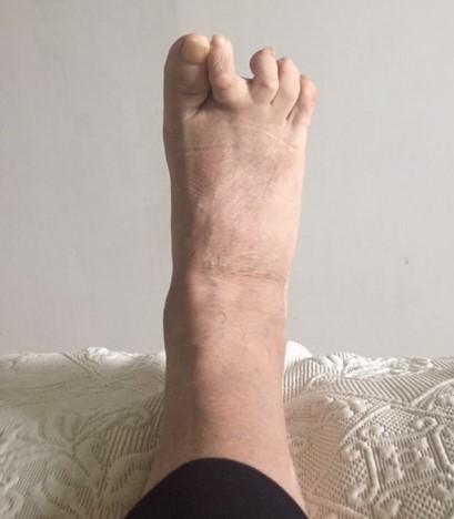 leikkauksen jälkeen